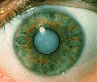 Wat is cataract, leidend tot blindheid